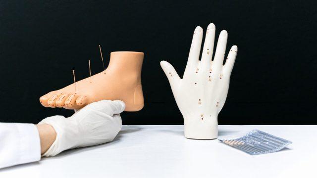 Agopuntura: domande e risposte